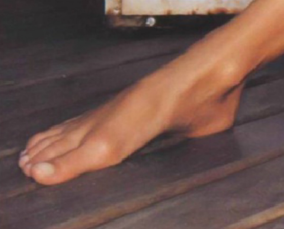 moss feet Kate
